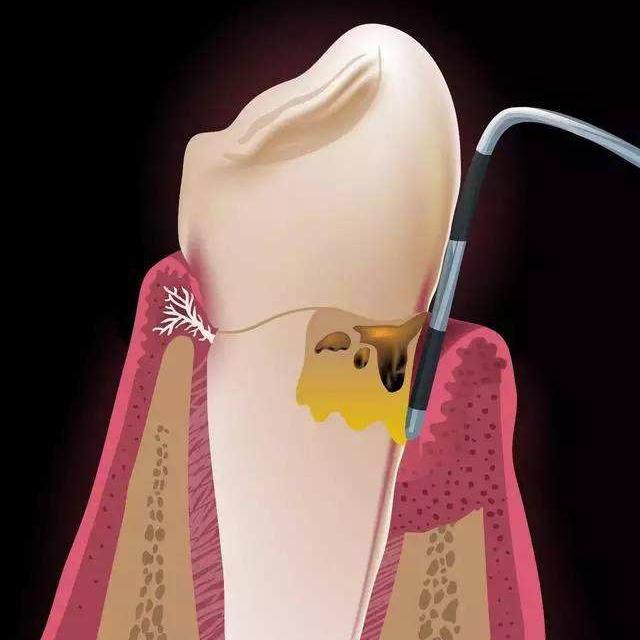系统性牙周病治疗